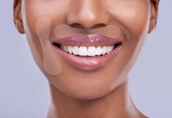 lippenfalten entfernen mit mundpads